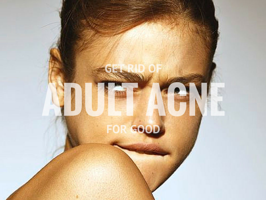 Hey! I give you some tips to defeat the adult acne once for good
